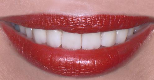 fateta dentara dupa