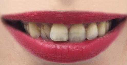 fateta dentara inainte