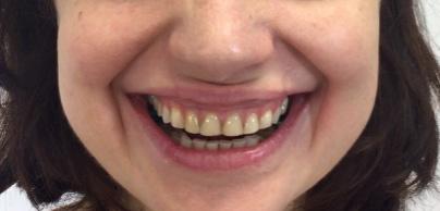 smile design inainte