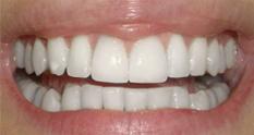 albire dinti dupa