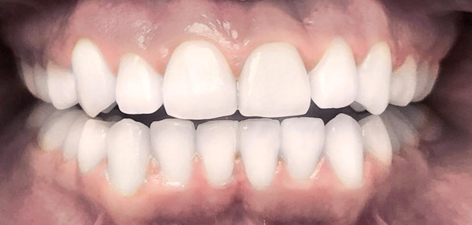 caz aparat dentar dupa