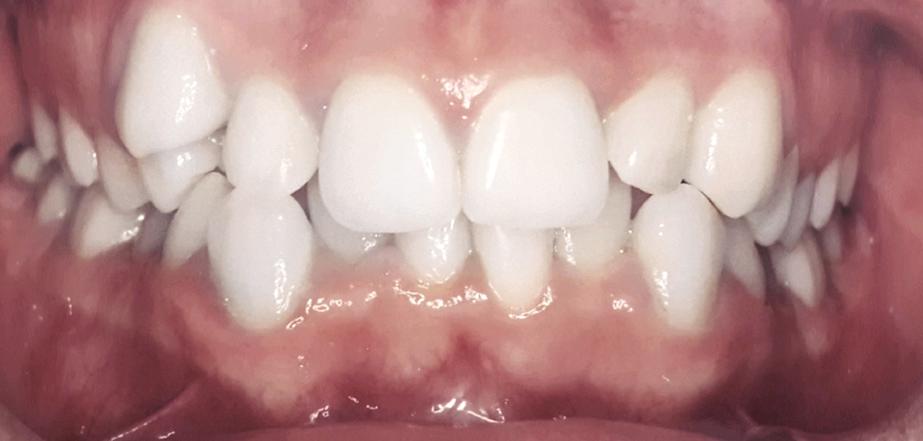 caz aparat dentar inainte