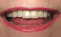 proteze dentare dupa