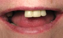 proteze dentare inainte
