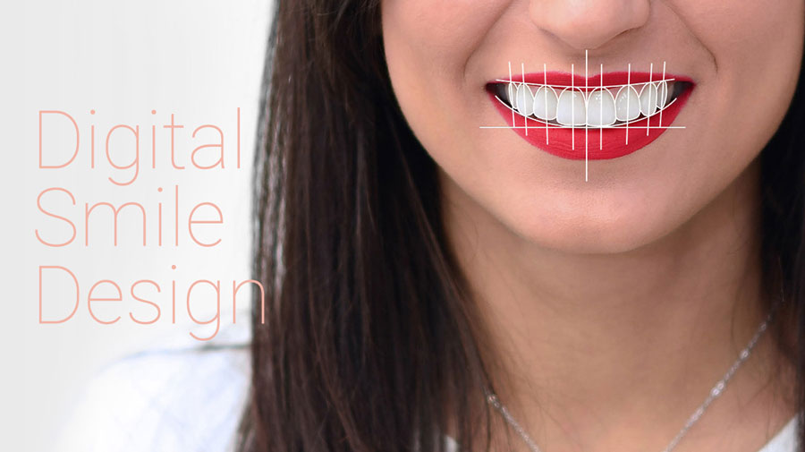 digital smile design clinica dentaplus