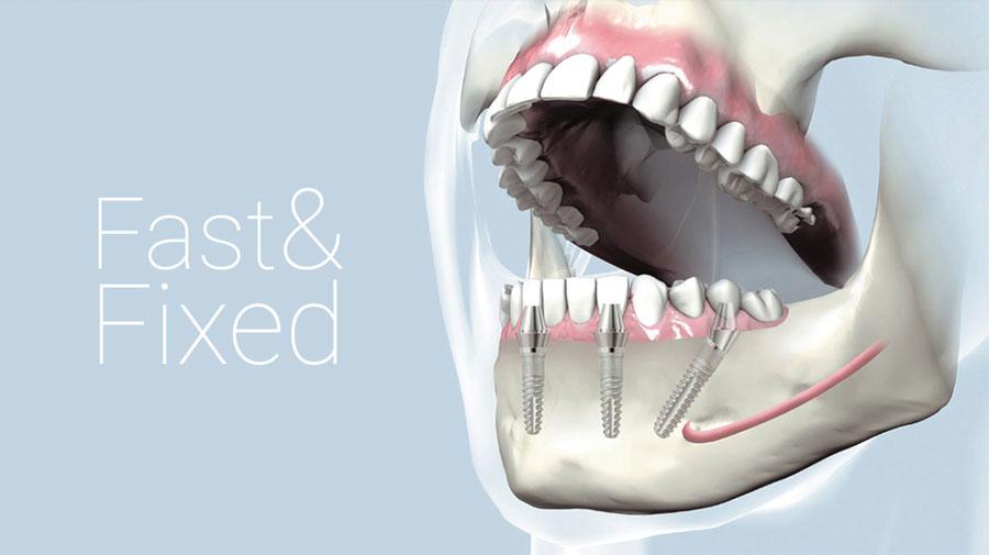 fast fixed dinti clinica dentaplus