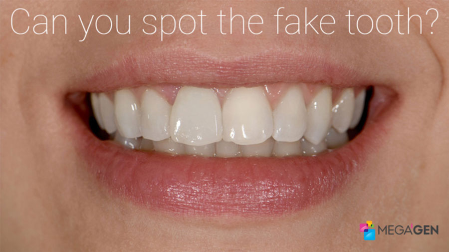 implant dentar megagen