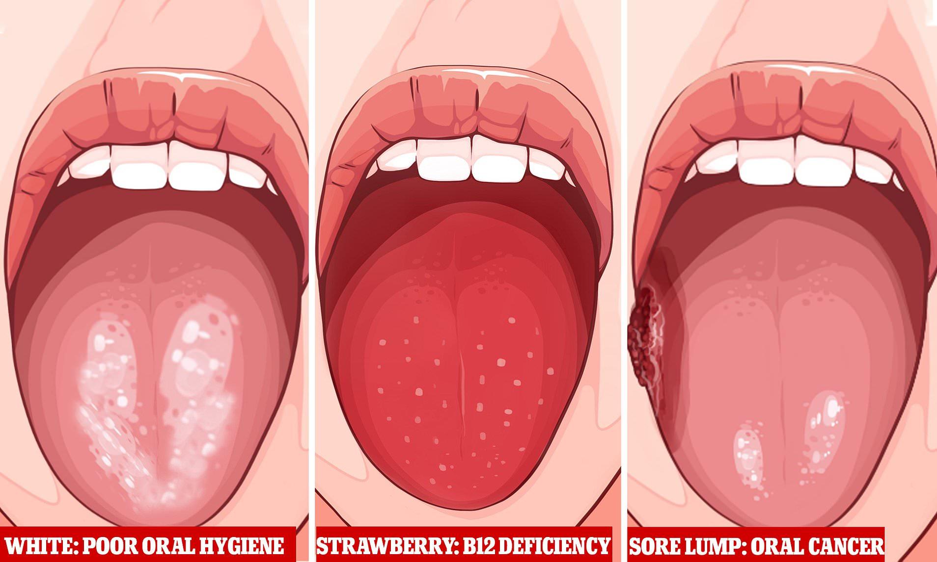pierdere în greutate răni gura)